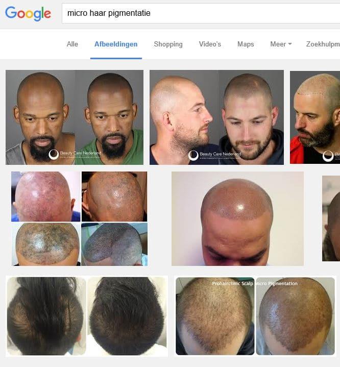 Micro haar pigmentatie afbeelding via Google.