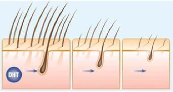 Micro haar pigmentatie bij dun haar