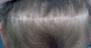 Micro haar pigmentatie bij FUT litteken