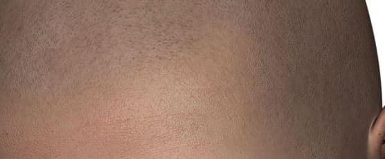 Micro haar pigmentatie ervaring - ingezoomd.