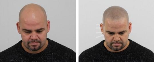 Micro haar pigmentatie na haartransplantatie