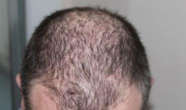 Micro haar pigmentatie als oplossing voor erfelijke haaruitval?