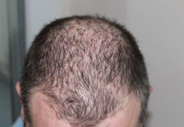 Micro haar pigmentatie bij erfelijke haaruitval.