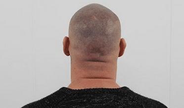 FUE littekens behandelen met micro haar pigmentatie