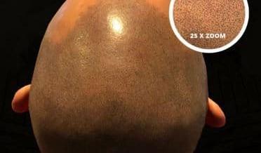 Micro haar pigmentatie ingezoomd / close-up