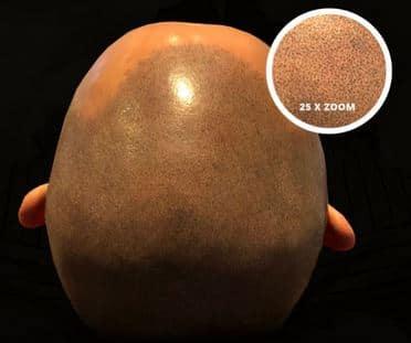 Micro haar pigmentatie ingezoomd / close-up.